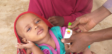 Unterernährung bei Kindern weit verbreitet