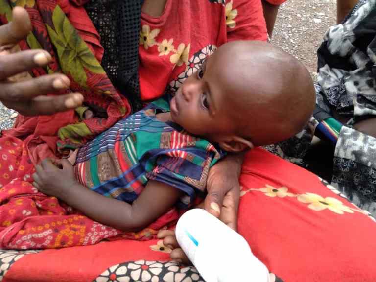 Flüchlingskind stark unterernährt
